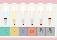 Small illustration of an A negative result on a column agglutination blood typing test