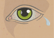 Illustration of a teary, bloodshot eye