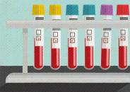 Illustration of five laboratory vials of blood samples
